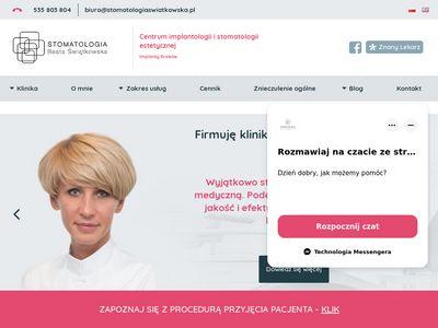 Stomatologiaswiatkowska.pl implanty zębów